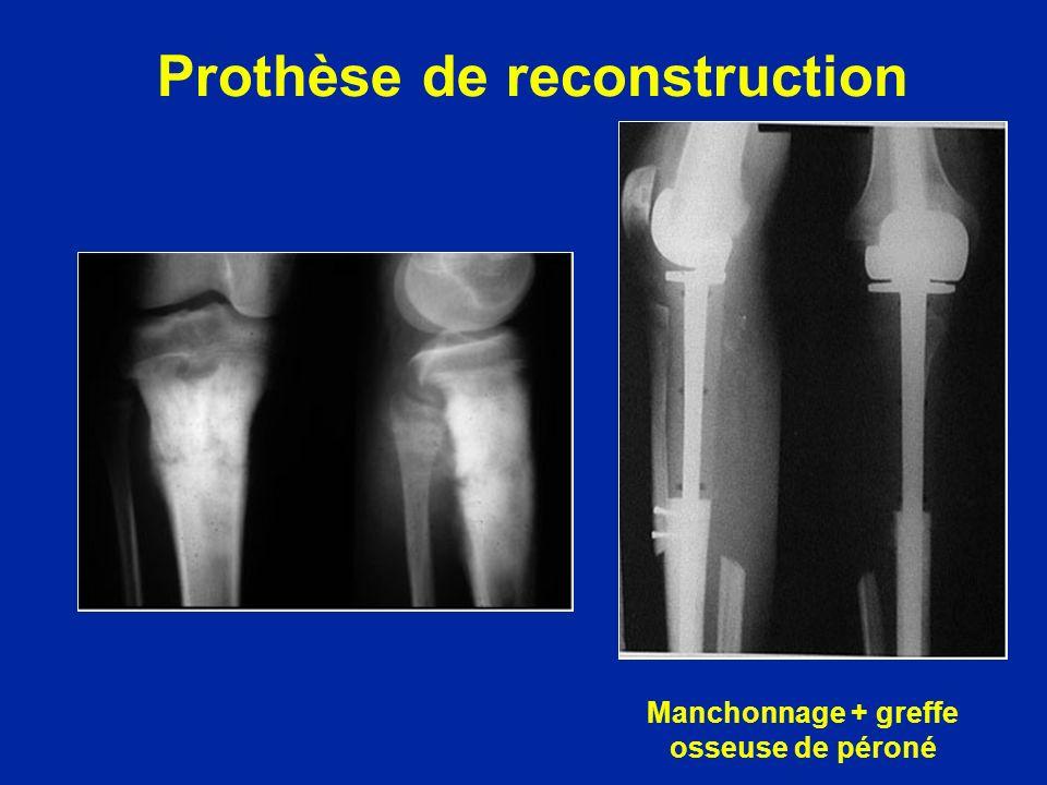Prothèse de reconstruction Manchonnage + greffe osseuse de péroné