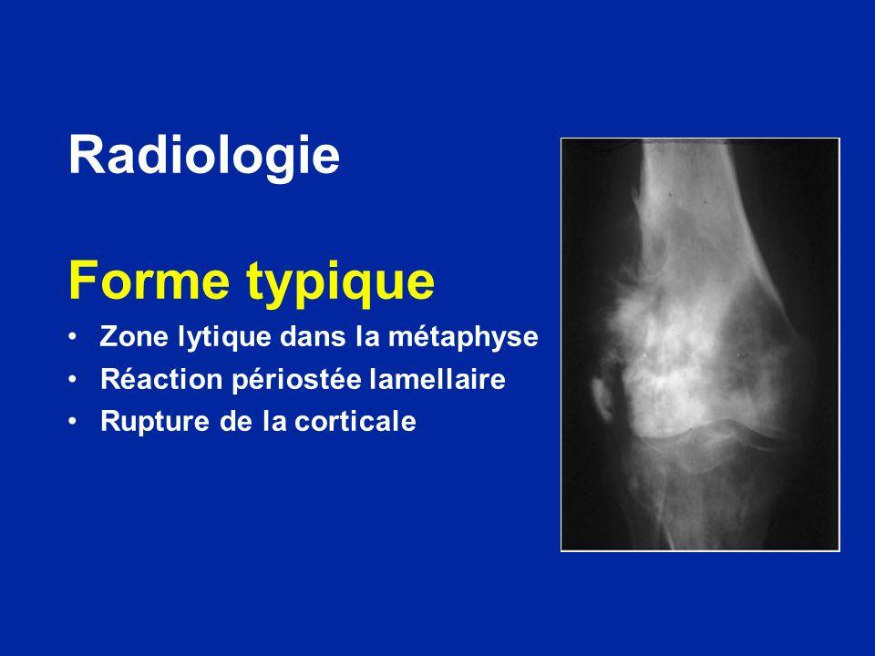 Radiologie Forme typique Zone lytique dans la métaphyse Réaction périostée lamellaire Rupture de la corticale