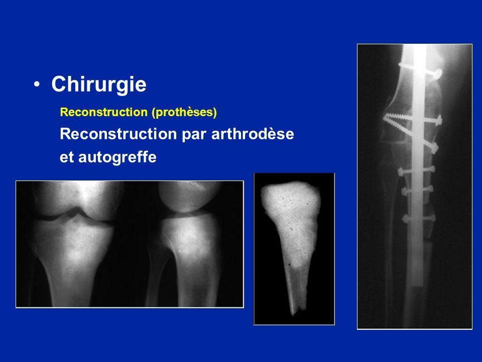 Chirurgie Reconstruction (prothèses) Reconstruction par arthrodèse et autogreffe