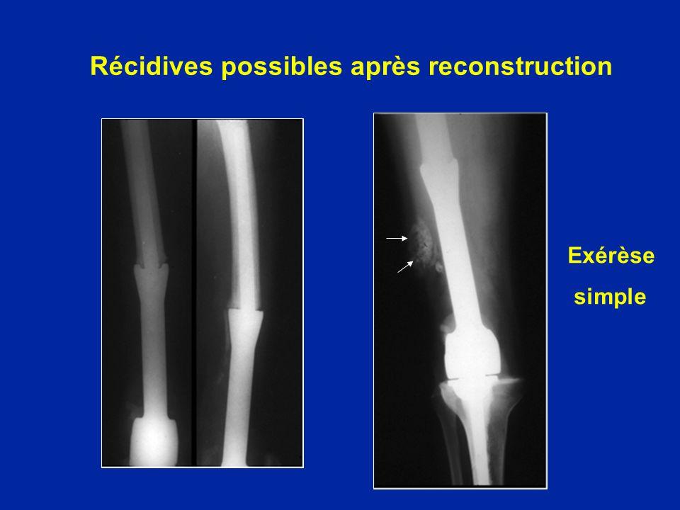 Récidives possibles après reconstruction Exérèse simple