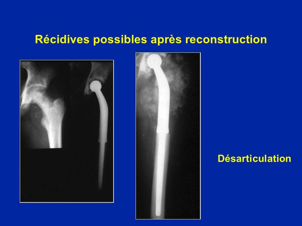 Récidives possibles après reconstruction Désarticulation