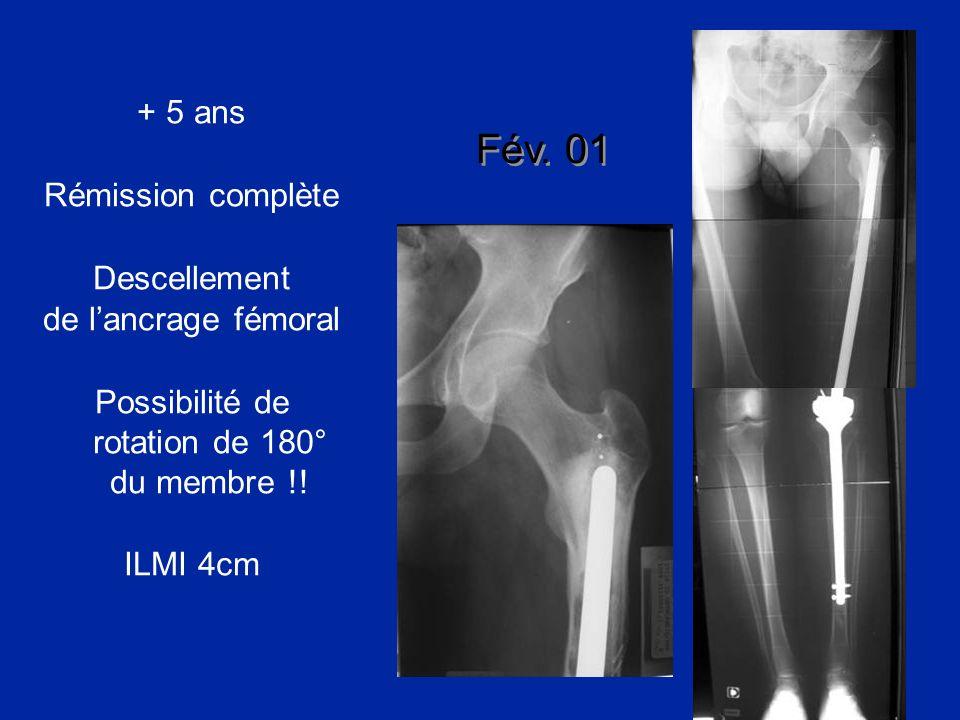 + 5 ans Rémission complète Descellement de lancrage fémoral Possibilité de rotation de 180° du membre !! ILMI 4cm Fév. 01