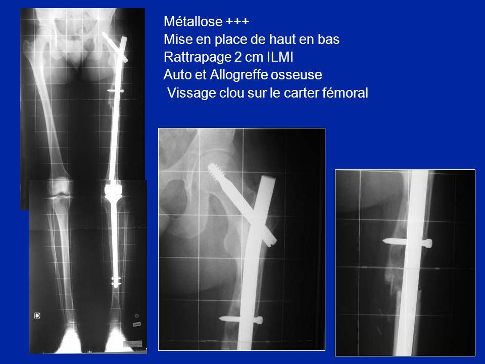 Métallose +++ Mise en place de haut en bas Rattrapage 2 cm ILMI Auto et Allogreffe osseuse Vissage clou sur le carter fémoral