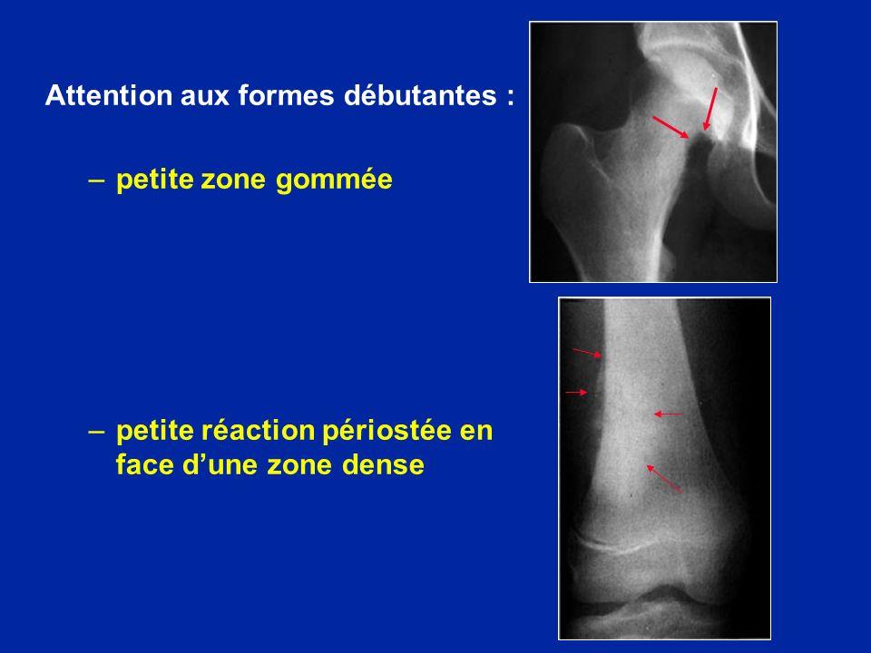Attention aux formes débutantes : –petite zone gommée –petite réaction périostée en face dune zone dense