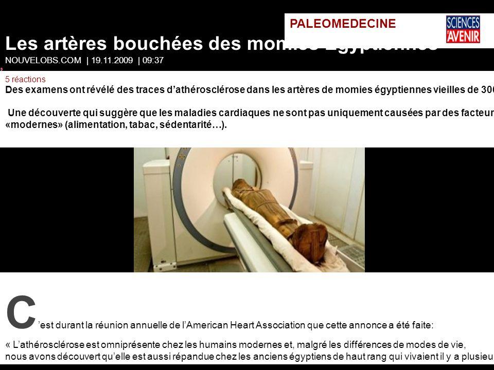 PALEOMEDECINE Les artères bouchées des momies Egyptiennes NOUVELOBS.COM | 19.11.2009 | 09:37 5 réactions Des examens ont révélé des traces dathérosclé