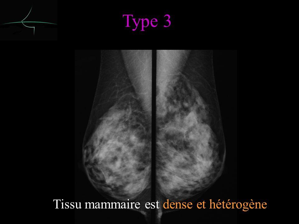 Type 3 50 à 89% de tissu dense Tissu mammaire est dense et hétérogène