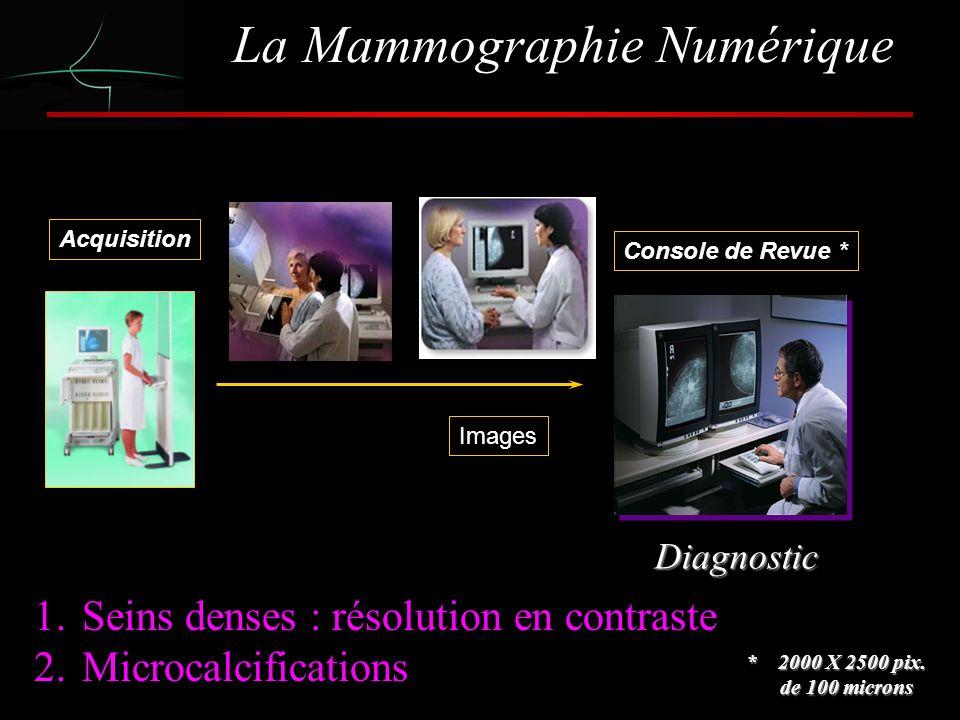 La Mammographie Numérique Acquisition COMMENT CA MARCHE Console de Revue * Images Diagnostic * 2000 X 2500 pix.