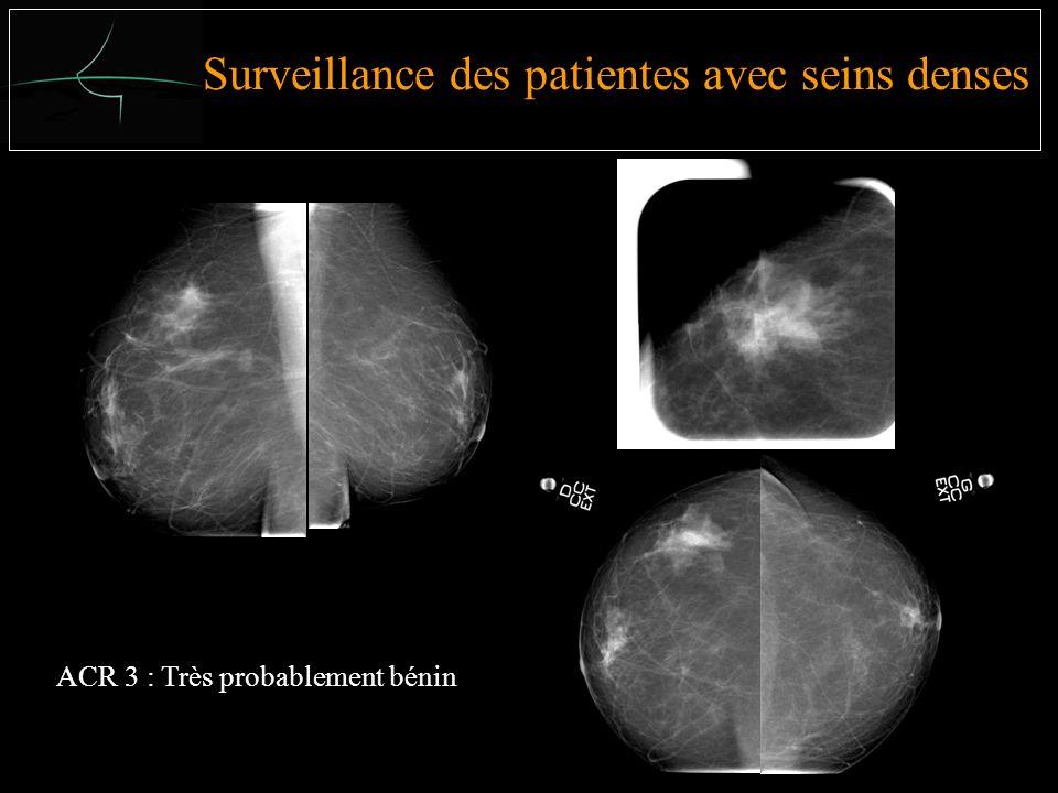 Surveillance des patientes avec seins denses ACR 3 : Très probablement bénin