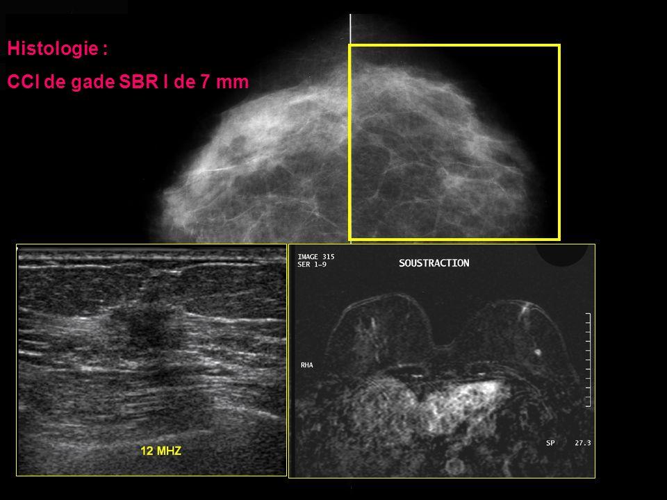 Patiente de 62 ans, sans antécédent, examen clinique : noyau dans le QIE gauche TYPE II Histologie : CCI de gade SBR I de 7 mm