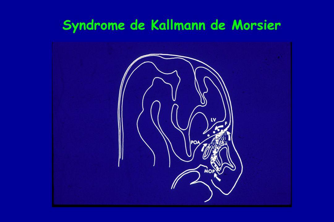 Syndrome de Kallmann de Morsier