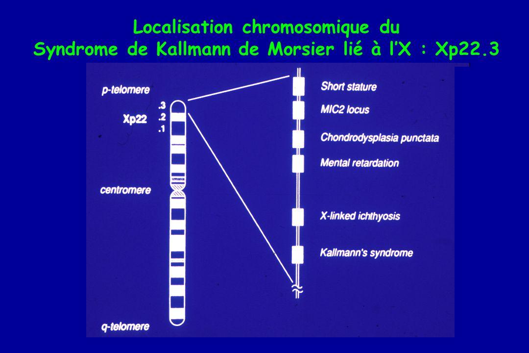 Localisation chromosomique du Syndrome de Kallmann de Morsier lié à lX : Xp22.3