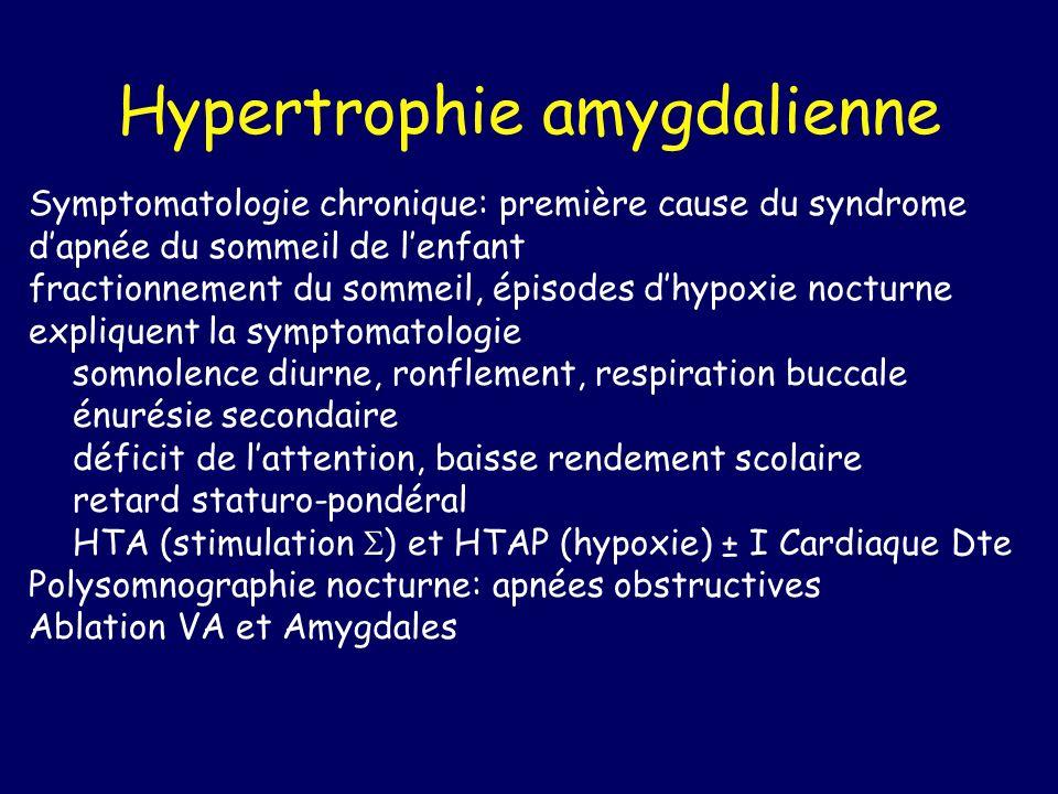 Hypertrophie amygdalienne Symptomatologie chronique: première cause du syndrome dapnée du sommeil de lenfant fractionnement du sommeil, épisodes dhypo