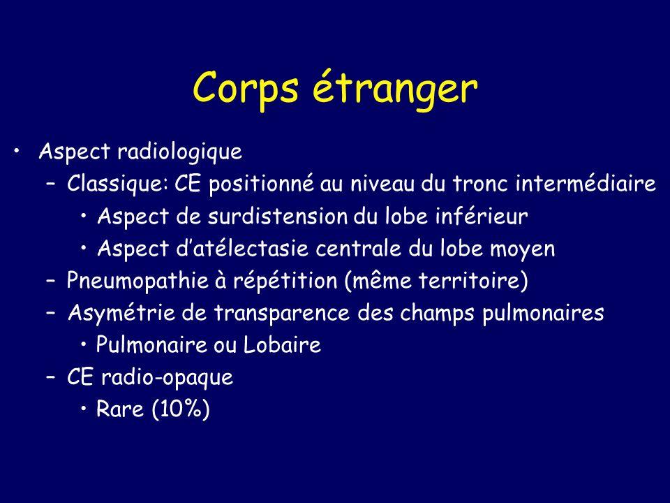 Corps étranger Aspect radiologique –Classique: CE positionné au niveau du tronc intermédiaire Aspect de surdistension du lobe inférieur Aspect datélec