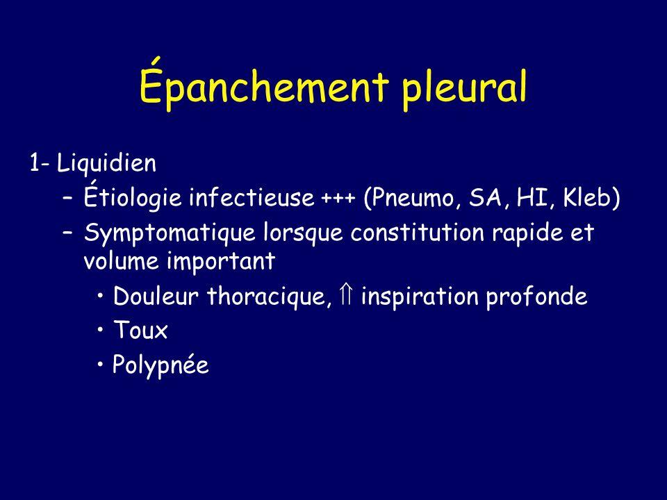 Épanchement pleural 1- Liquidien –Étiologie infectieuse +++ (Pneumo, SA, HI, Kleb) –Symptomatique lorsque constitution rapide et volume important Doul