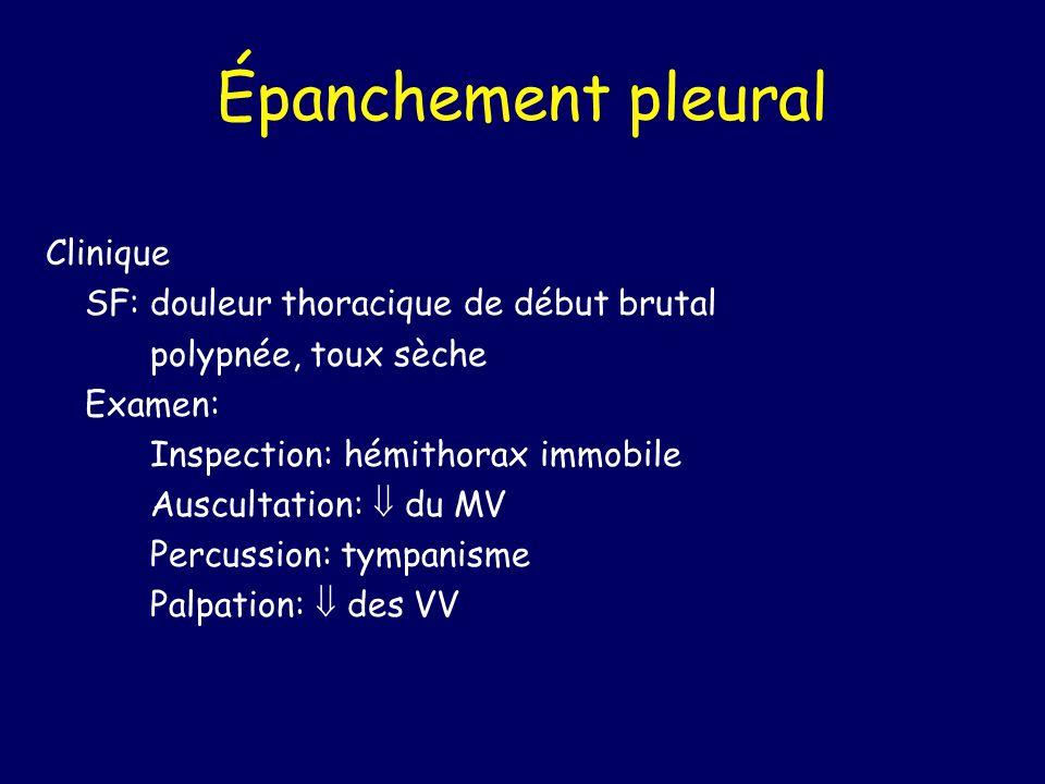 Épanchement pleural Clinique SF:douleur thoracique de début brutal polypnée, toux sèche Examen: Inspection: hémithorax immobile Auscultation: du MV Pe