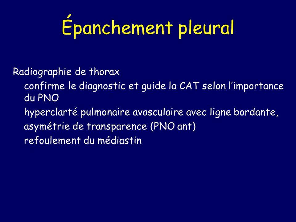 Épanchement pleural Radiographie de thorax confirme le diagnostic et guide la CAT selon limportance du PNO hyperclarté pulmonaire avasculaire avec lig