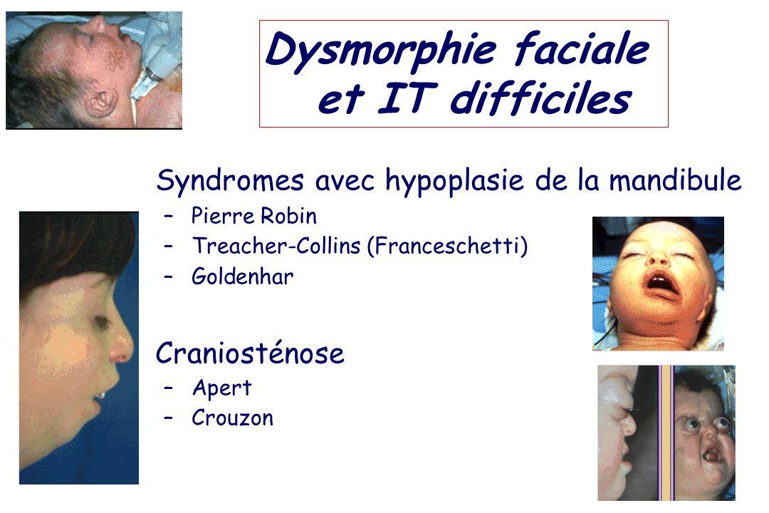 Dysmorphie faciale et IT difficiles Syndromes avec hypoplasie de la mandibule – Pierre Robin – Treacher-Collins (Franceschetti) – Goldenhar Craniostén
