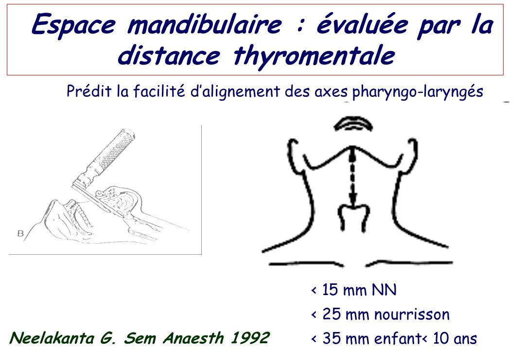 Espace mandibulaire : évaluée par la distance thyromentale Neelakanta G. Sem Anaesth 1992 Prédit la facilité dalignement des axes pharyngo-laryngés <