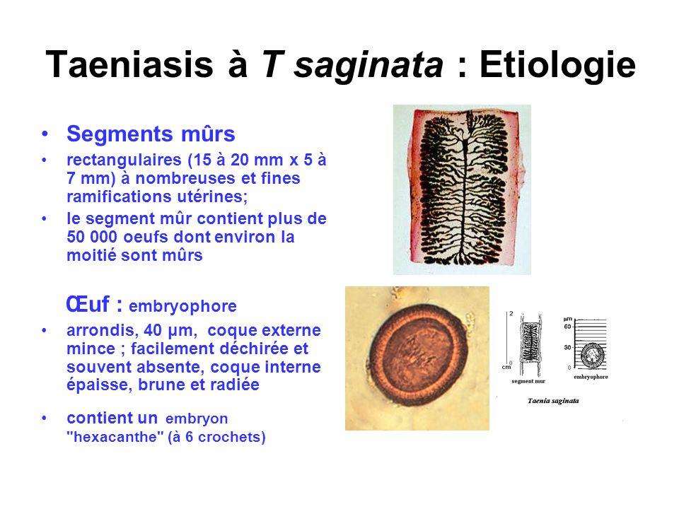 Taeniasis à T saginata : Etiologie Segments mûrs rectangulaires (15 à 20 mm x 5 à 7 mm) à nombreuses et fines ramifications utérines; le segment mûr c