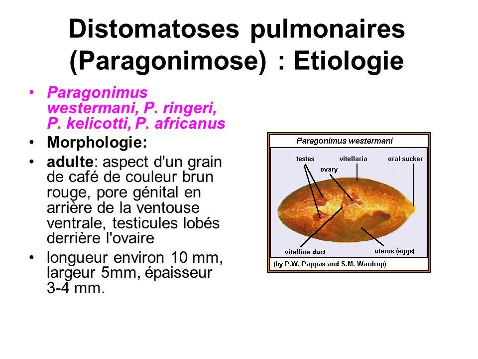 Distomatoses pulmonaires (Paragonimose) : Etiologie Paragonimus westermani, P. ringeri, P. kelicotti, P. africanus Morphologie: adulte: aspect d'un gr