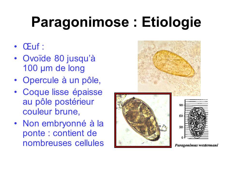 Paragonimose : Etiologie Œuf : Ovoïde 80 jusquà 100 µm de long Opercule à un pôle, Coque lisse épaisse au pôle postérieur couleur brune, Non embryonné