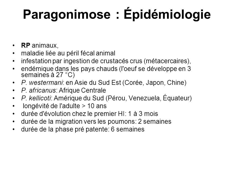 Paragonimose : Épidémiologie RP animaux, maladie liée au péril fécal animal infestation par ingestion de crustacés crus (métacercaires), endémique dan