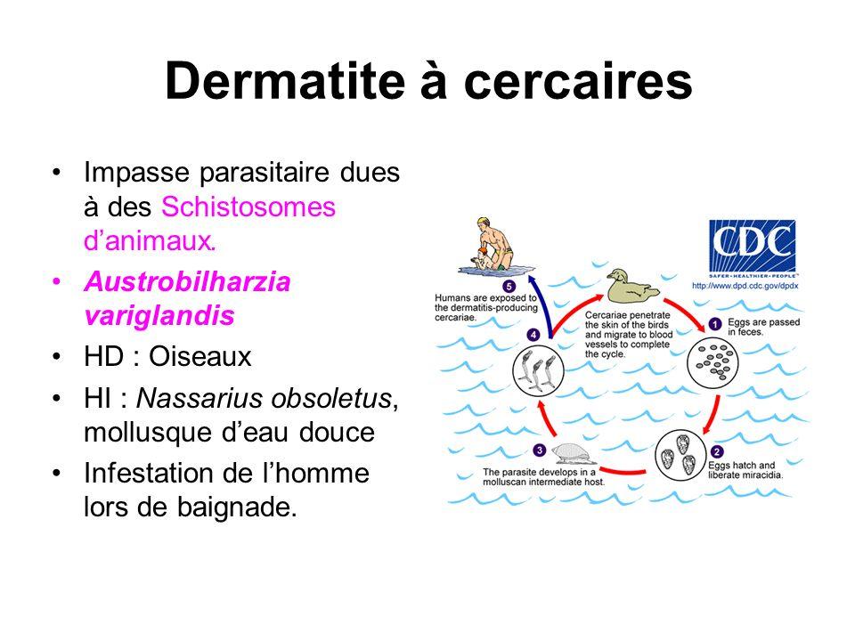 Dermatite à cercaires Impasse parasitaire dues à des Schistosomes danimaux. Austrobilharzia variglandis HD : Oiseaux HI : Nassarius obsoletus, mollusq