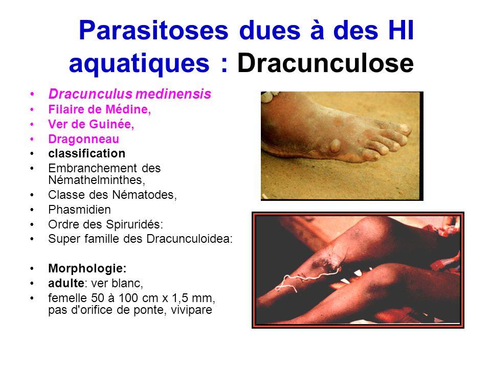 Parasitoses dues à des HI aquatiques : Dracunculose Dracunculus medinensis Filaire de Médine, Ver de Guinée, Dragonneau classification Embranchement d