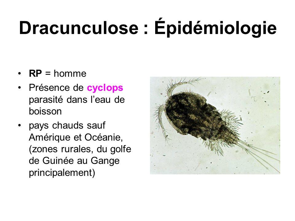 Dracunculose : Épidémiologie RP = homme Présence de cyclops parasité dans leau de boisson pays chauds sauf Amérique et Océanie, (zones rurales, du gol
