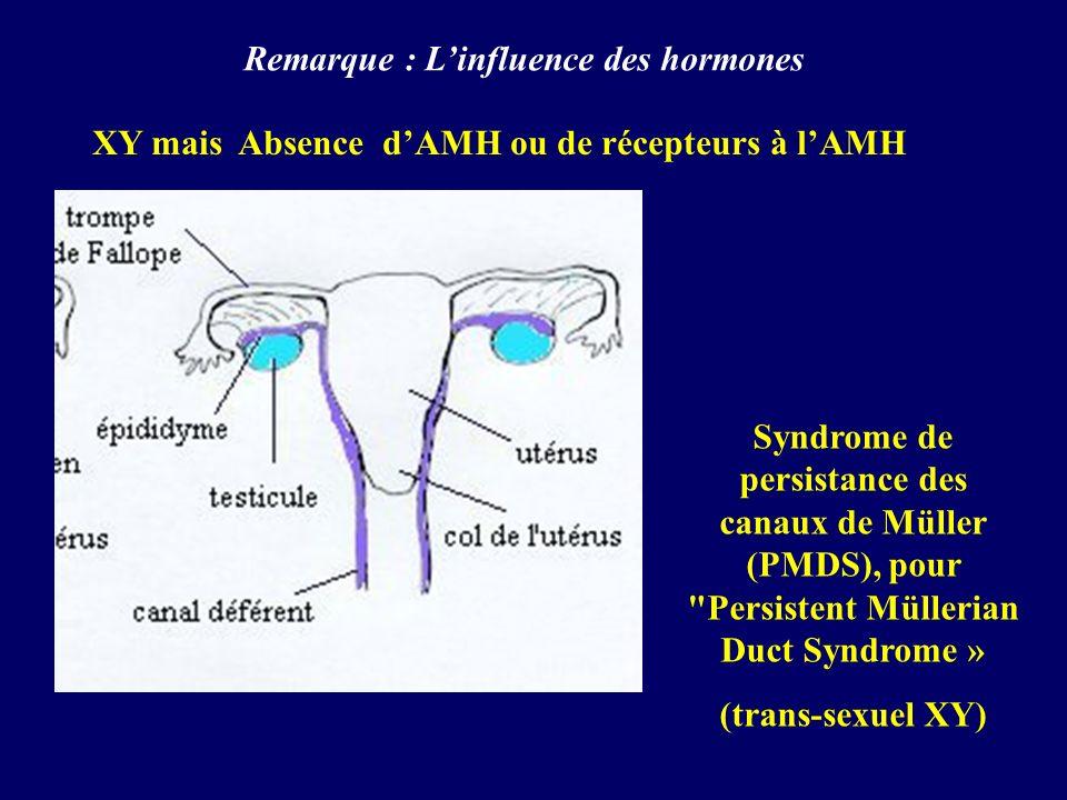 Syndrome de persistance des canaux de Müller (PMDS), pour