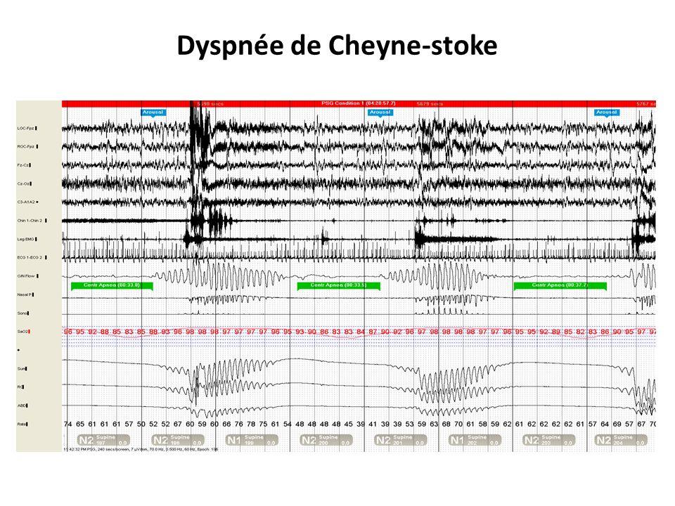 Dyspnée de Cheyne-stoke