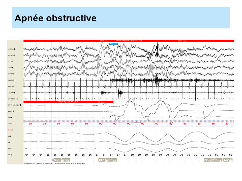 Définition du syndrome dapnées/hypopnées centrales du sommeil (CSA) Il faut remplir un critère A, B et C.