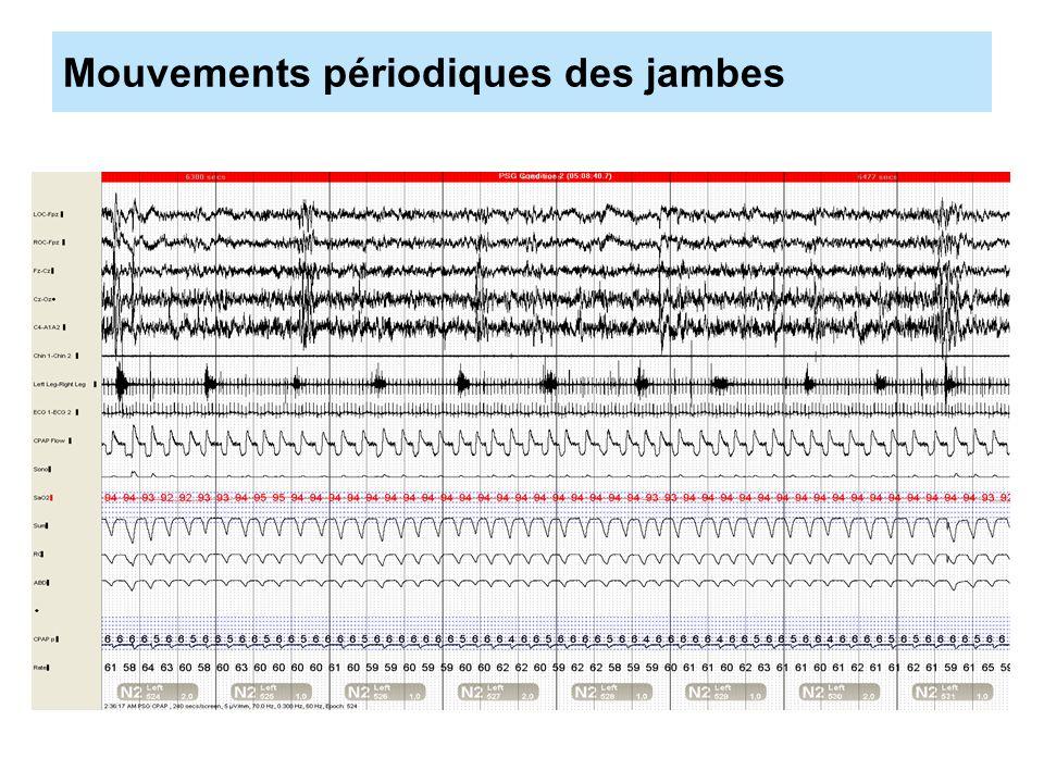 Sévérité : index dévènements respiratoires 5 à 15 : léger 15 à 30 modéré Plus de 30 sévère Choix de 5 par heure .