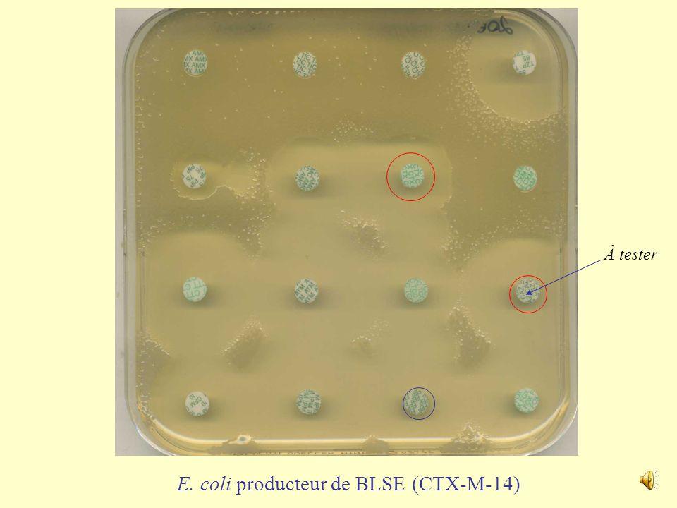 E. coli hyper producteur de céphalosporinase À tester