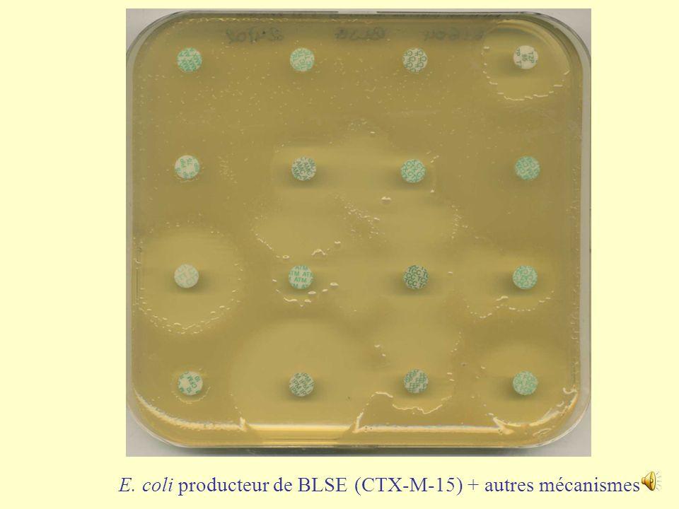 E. coli producteur de BLSE (SHV-12) (Mesure des CMI FEP, TZP)
