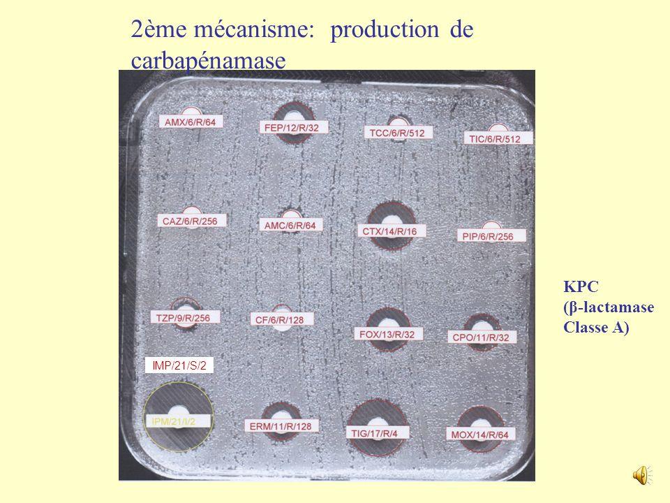 Effet de la production dune β-lactamase CTX-M-15 et de laltération de lefflux et des porines sur la sensibilité aux β-lactamines chez Klebsiella pneum