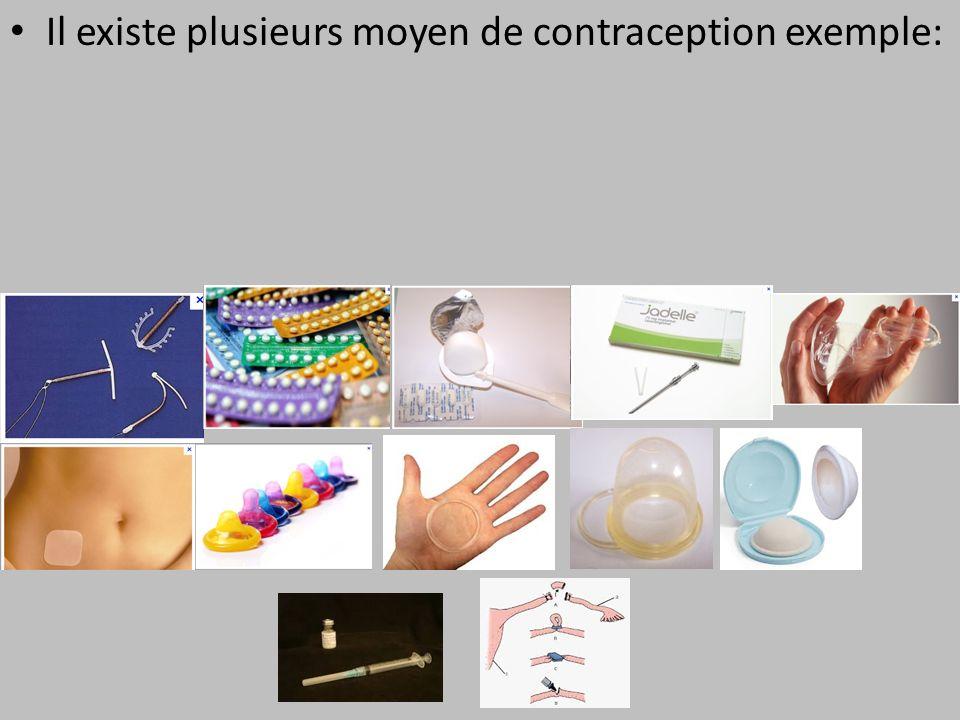 Quel contraception choisir Il existe plusieurs moyen de contraception exemple: