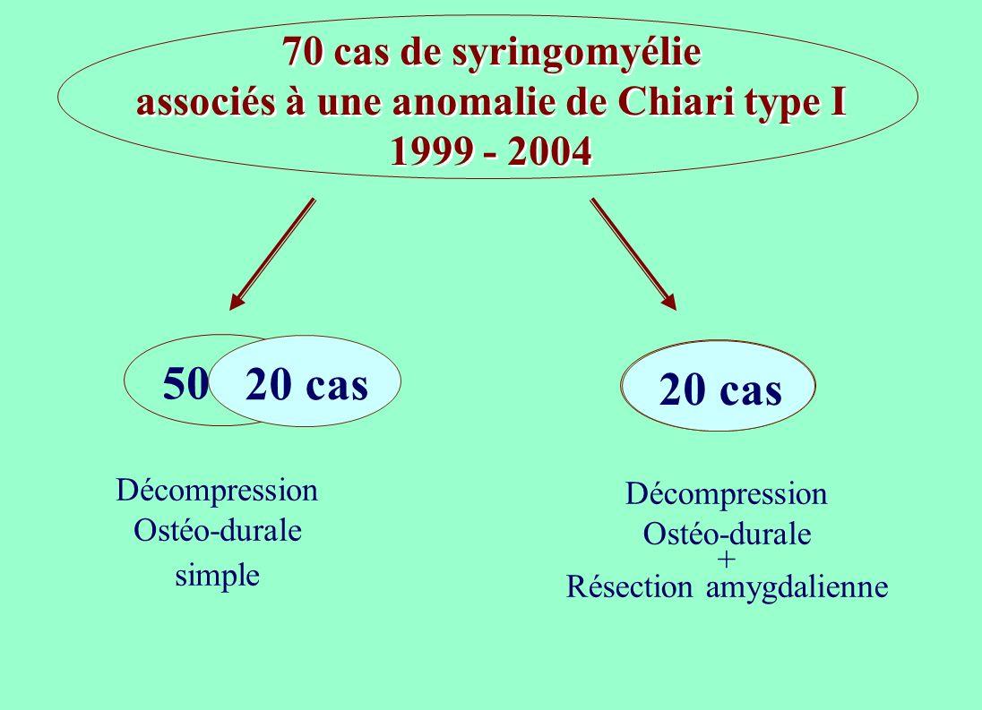 70 cas de syringomyélie associés à une anomalie de Chiari type I 1999 - 2004 50 cas Décompression Ostéo-durale simple 20 cas Décompression Ostéo-dural