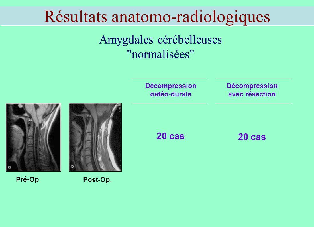 Résultats anatomo-radiologiques Amygdales cérébelleuses