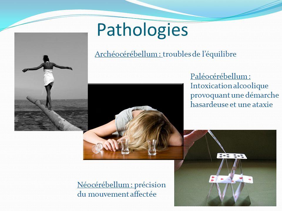 Pathologies Archéocérébellum : troubles de léquilibre Paléocérébellum : Intoxication alcoolique provoquant une démarche hasardeuse et une ataxie Néocérébellum : précision du mouvement affectée