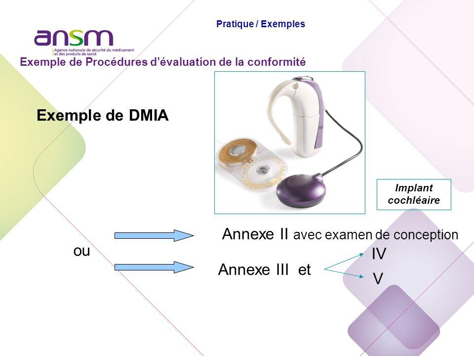 Exemple de DMIA Annexe II avec examen de conception ou Annexe III et IV V Implant cochléaire Exemple de Procédures dévaluation de la conformité Pratiq