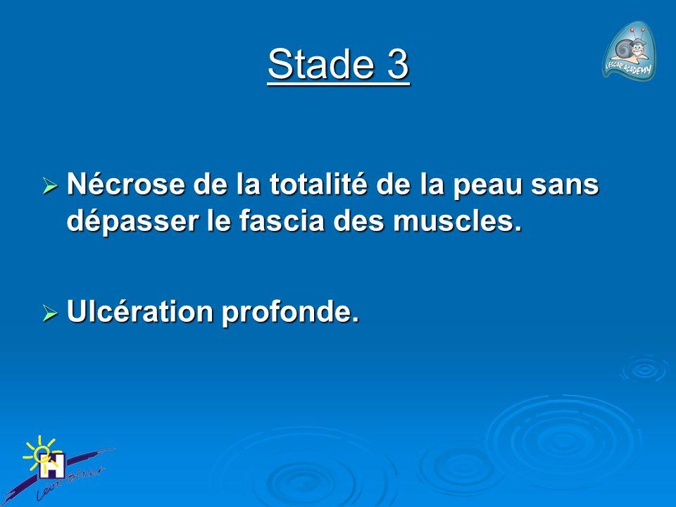 Stade 3 Nécrose de la totalité de la peau sans dépasser le fascia des muscles. Nécrose de la totalité de la peau sans dépasser le fascia des muscles.