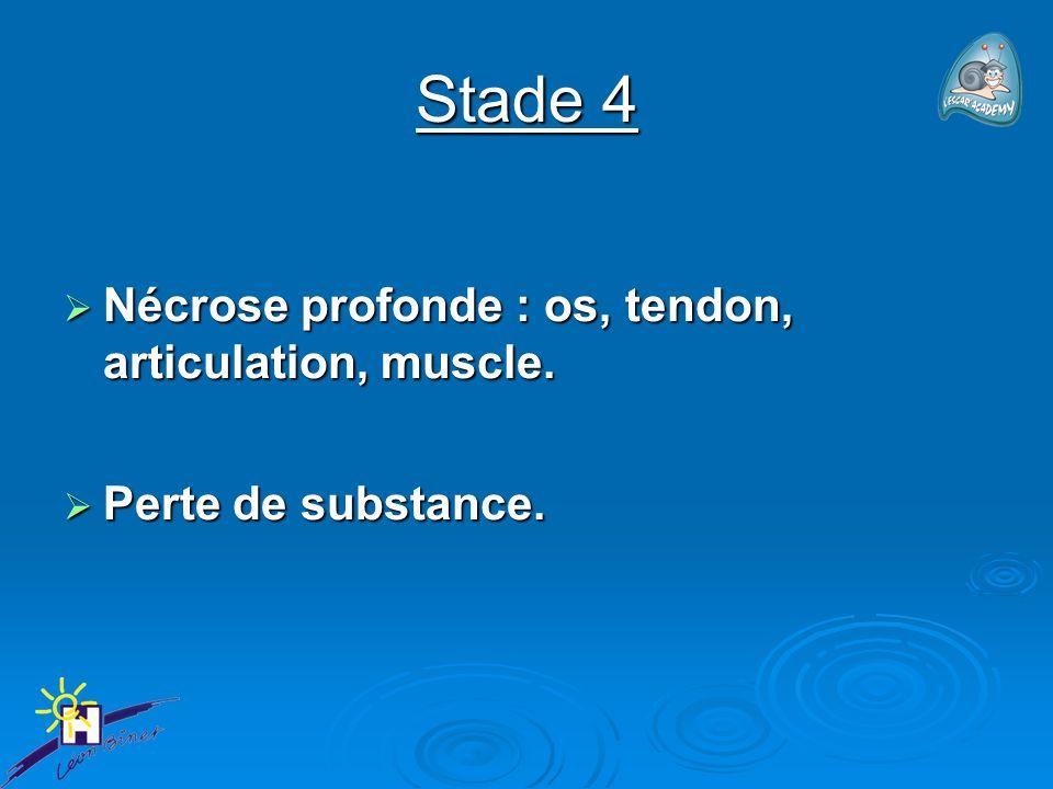 Stade 4 Nécrose profonde : os, tendon, articulation, muscle. Nécrose profonde : os, tendon, articulation, muscle. Perte de substance. Perte de substan