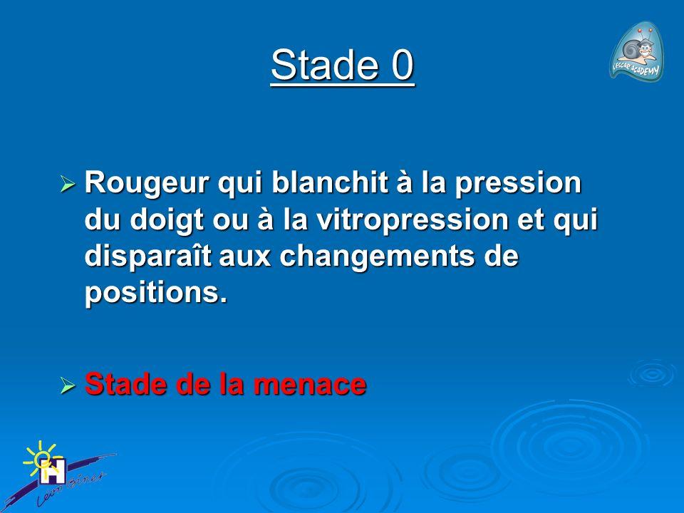 Stade 0 Rougeur qui blanchit à la pression du doigt ou à la vitropression et qui disparaît aux changements de positions. Rougeur qui blanchit à la pre
