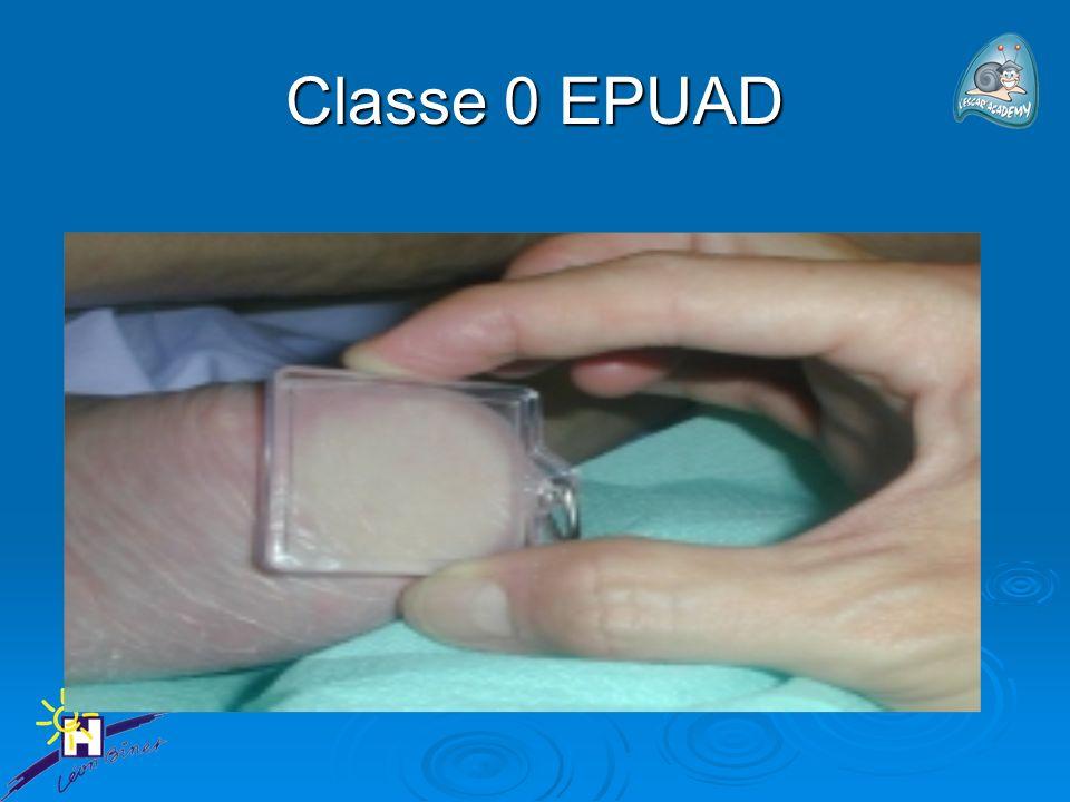 Classe 0 EPUAD