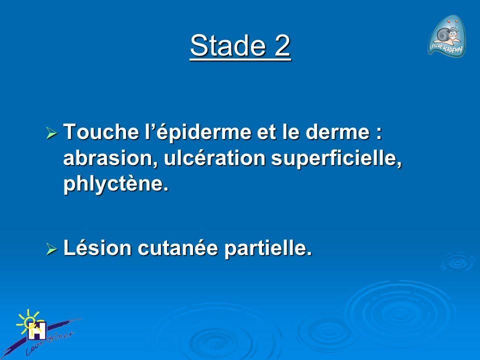 Stade 2 Touche lépiderme et le derme : abrasion, ulcération superficielle, phlyctène. Touche lépiderme et le derme : abrasion, ulcération superficiell