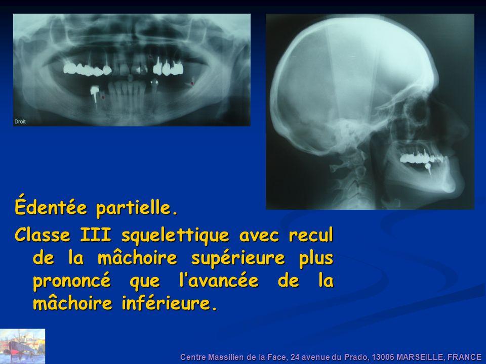 Édentée partielle. Classe III squelettique avec recul de la mâchoire supérieure plus prononcé que lavancée de la mâchoire inférieure. Centre Massilien