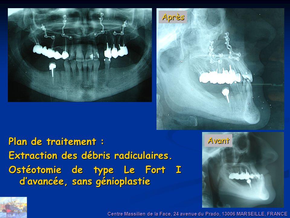 Plan de traitement : Extraction des débris radiculaires. Ostéotomie de type Le Fort I davancée, sans génioplastie Centre Massilien de la Face, 24 aven