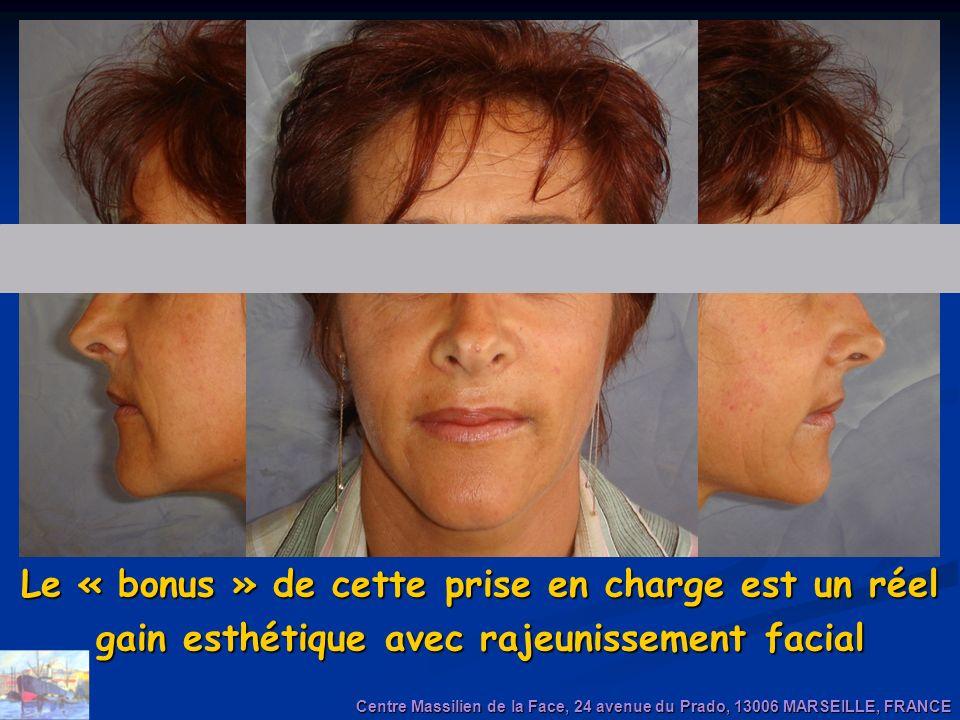 Le « bonus » de cette prise en charge est un réel gain esthétique avec rajeunissement facial Centre Massilien de la Face, 24 avenue du Prado, 13006 MA