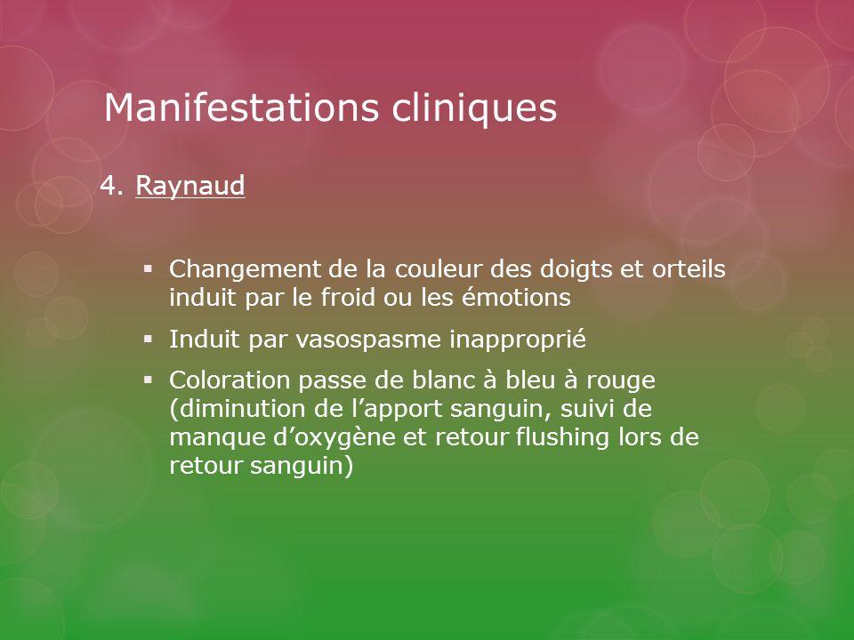 Manifestations cliniques 4.